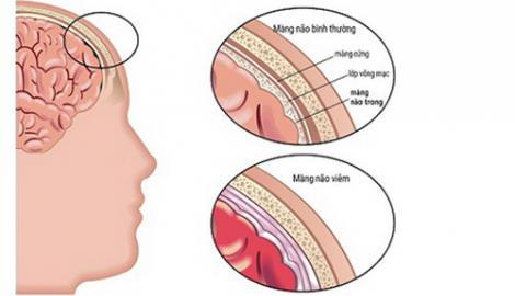 Tử vong vì viêm màng não do virut: Cần nhận biết sớm và phòng bệnh
